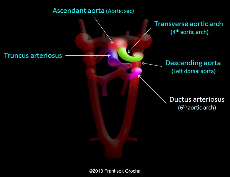 Aortic arch anomalies image